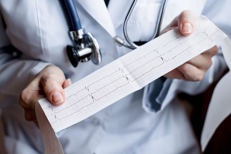 A qualidade do eletrocardiograma está boa no seu serviço?