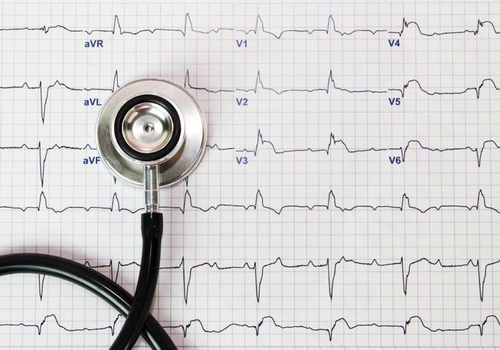 Outros fatores que interferem na qualidade do eletrocardiograma