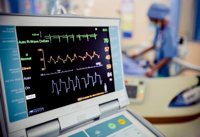 Qualidade do eletrocardiograma: o que define um bom exame de ECG?