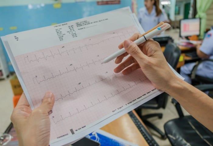 O que interfere na qualidade do eletrocardiograma?