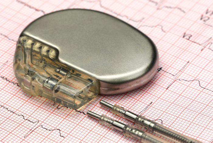 Em arritmias cardíacas crônicas, o marca passo é a solução para uma melhor qualidade de vida