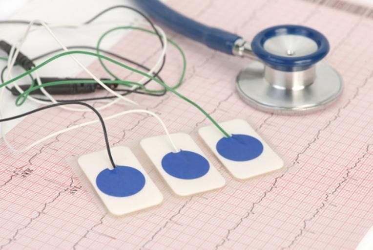 indicacao aparelhos como é feito o eletrocardiograma como funciona