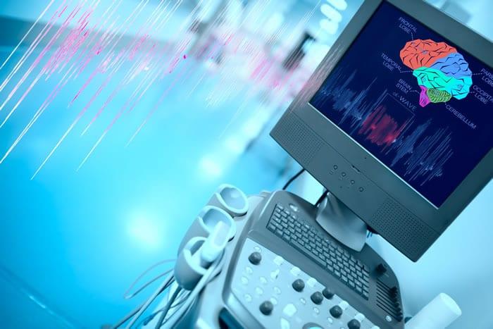 Benefícios do laudo a distância do EEG Ocupacional