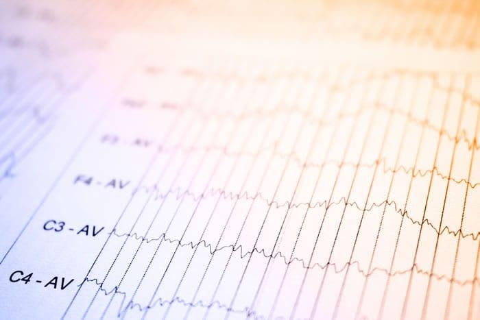 Como ter laudos rápidos de eletroencefalograma?