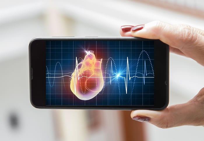 Por que oferecer o serviço de eletrocardiograma online na sua clínica?