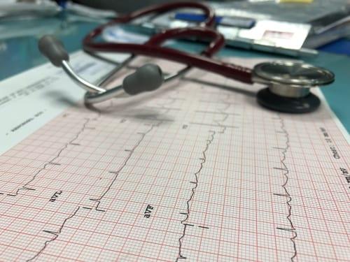eletrocardiograma a distância