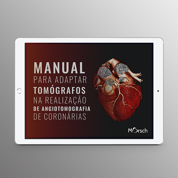 [E-book] Manual para adaptar tomógrafos na realização de angiotomografia de coronárias.