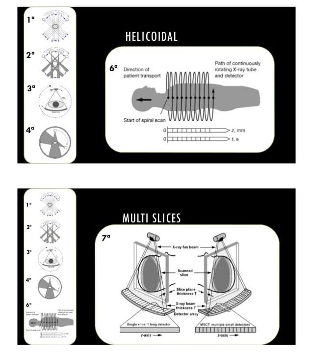 aparelhos de Tomografia