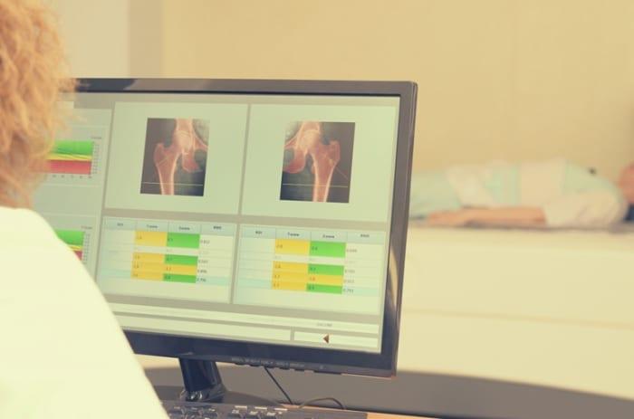 Como funciona o exame de densitometria óssea pela telemedicina