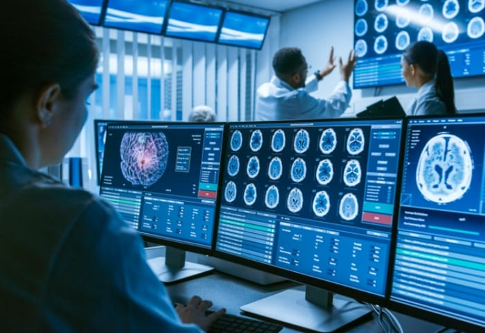 Como funciona a teleneurologia?