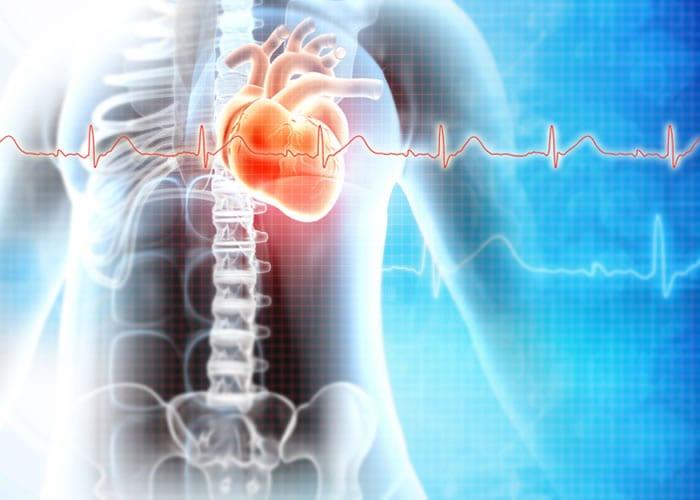 Telemedicina cardiológica no infarto agudo do miocárdio