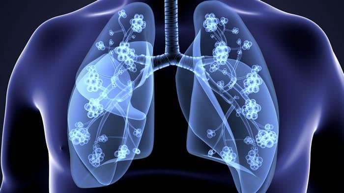 Riscos da Prova de Função Pulmonar