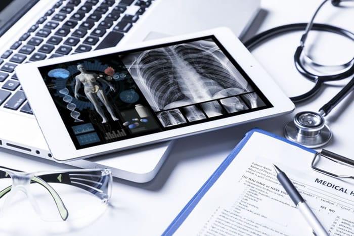 A telepneumologia como solução no laudo a distância da Prova de Função Pulmonar