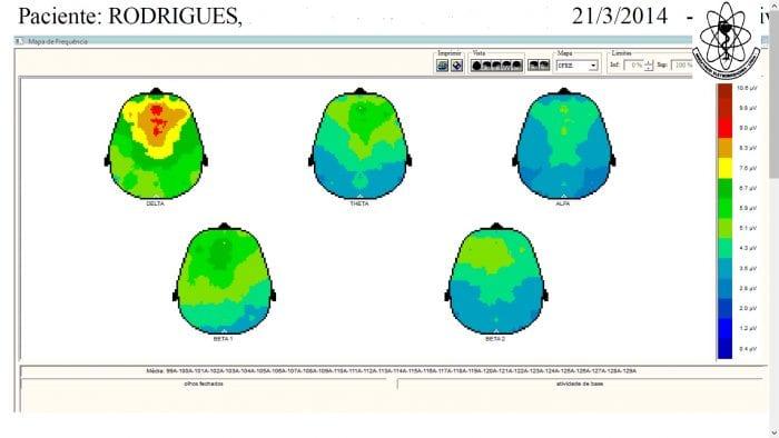 imagens de EEG