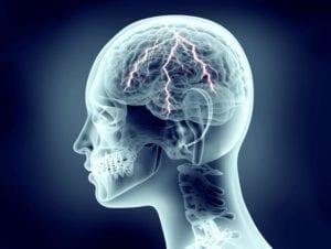 Eletroencefalograma com mapeamento cerebral