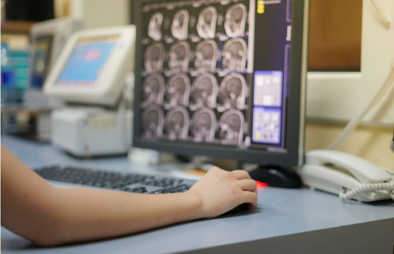 Como funciona a Telerradiolgia?