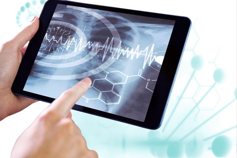 Laudo de RX digital direto no PACS da Telemedicina Morsch