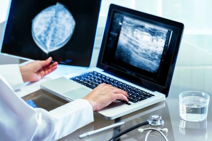 Importância do laudo de mamografia na saúde da mulher