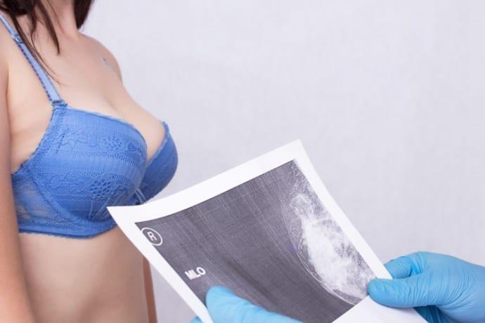 O laudo de mamografia na telemedicina