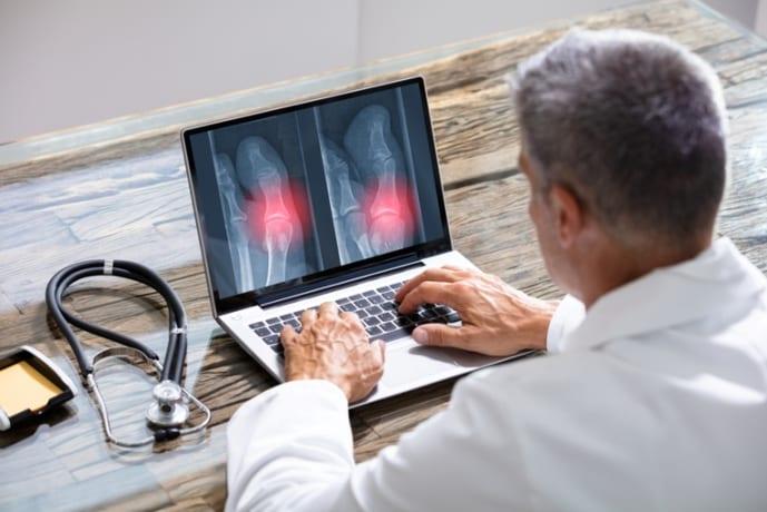 Benefícios do laudo a distância do raio x digital