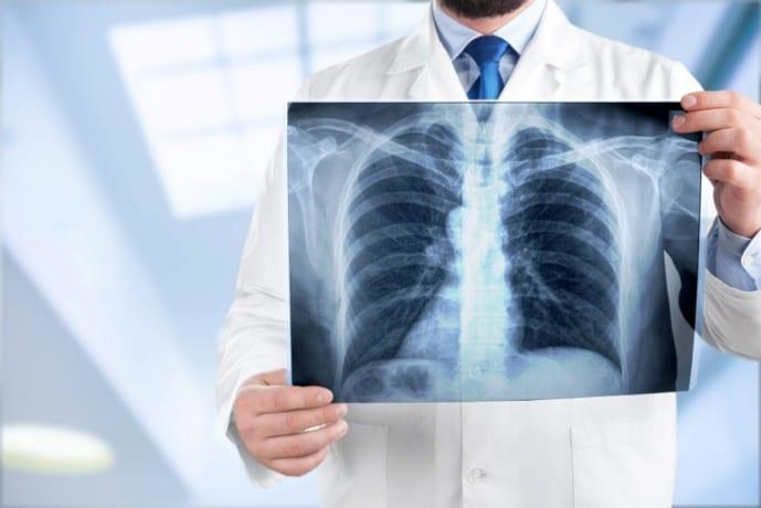 Sendo assim, descrevemos os 5 benefícios da Radiologia Digital