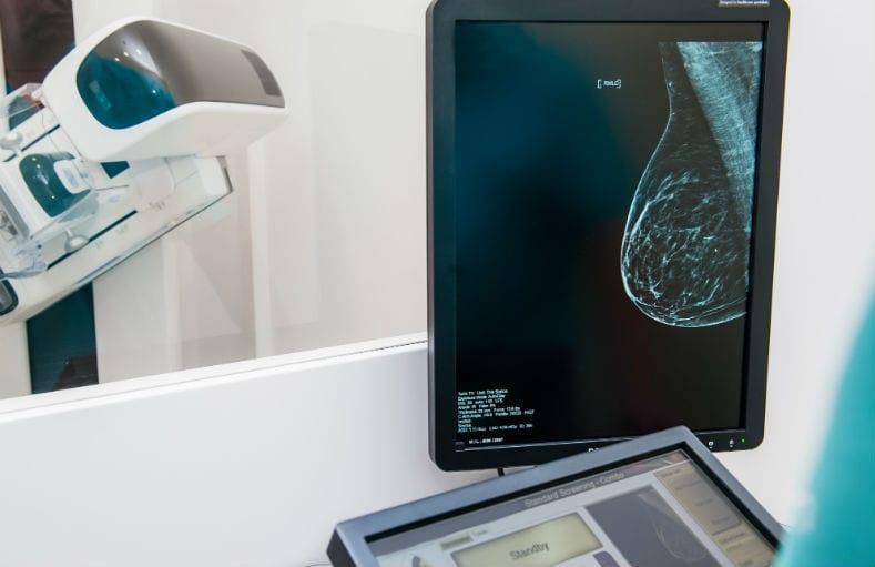 laudo rápido de mamografia