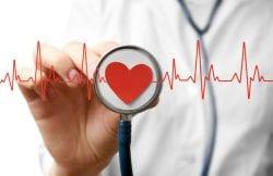 um aparelho de eletrocardiograma