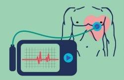eletrocardiograma de longa duração