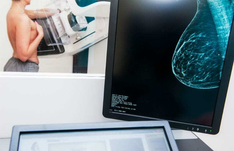 laudo de mamografia