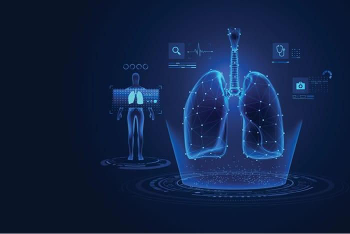 Telepneumologia como solução na emissão de laudo de espirometria ocupacional