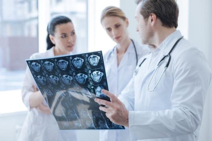 Em que casos vou precisar da telemedicina na neurologia?