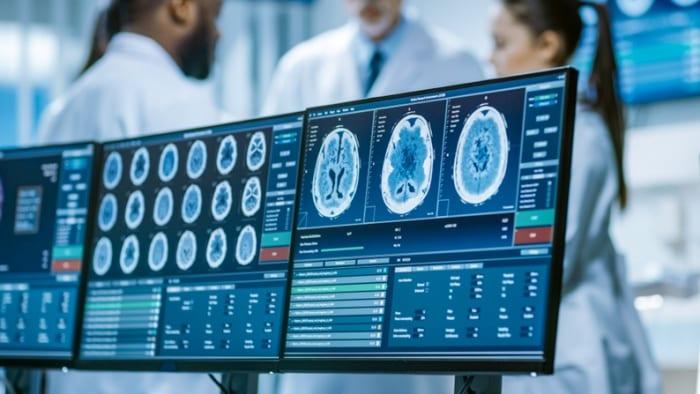 Exames contemplados pela telemedicina na neurologia