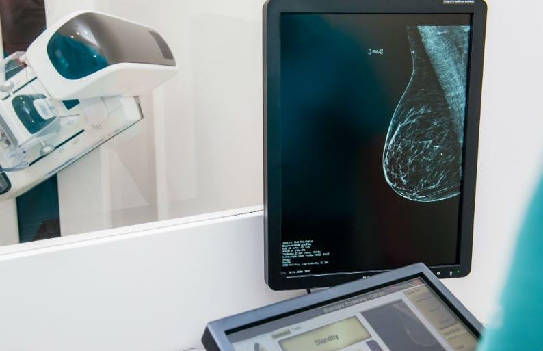 laudar mamografia