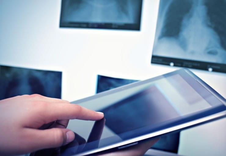 laudo de angiotomografia no tablet