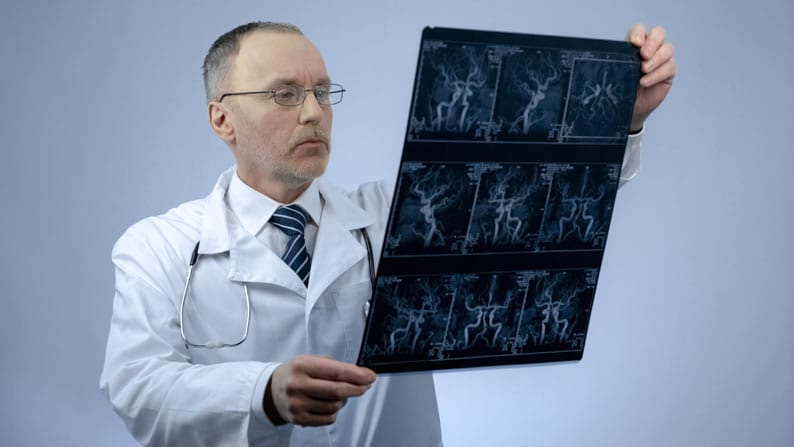 Médico com um filme de angiotomografia na mão