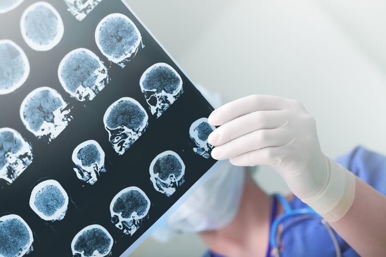 equipamento de raio x