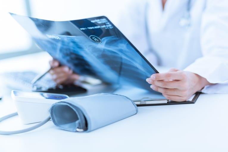 equipamento de raio x radiografia
