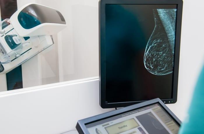 Indicações de ressonância magnética das mamas