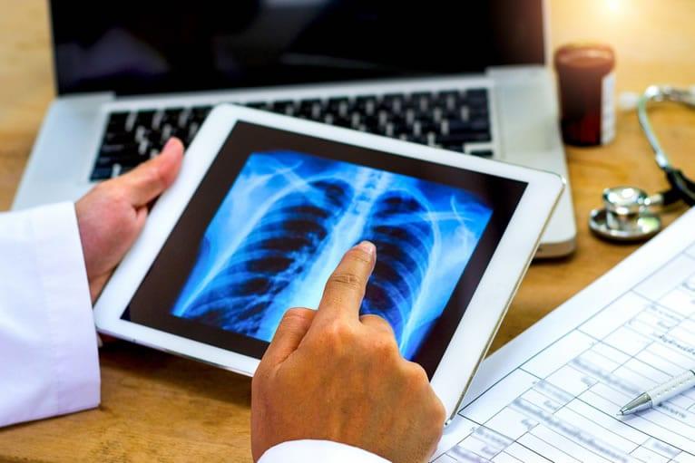 telemedicina radiologia