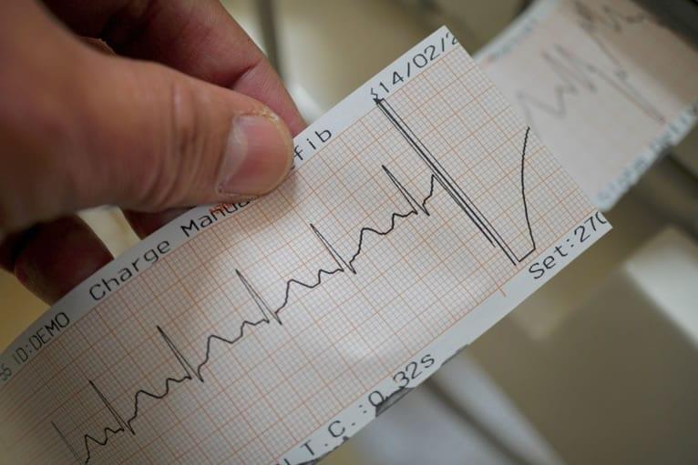 Como calcular o eixo elétrico do coração?