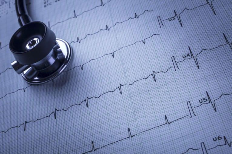 Traçado do eletrocardiograma: para que serve?