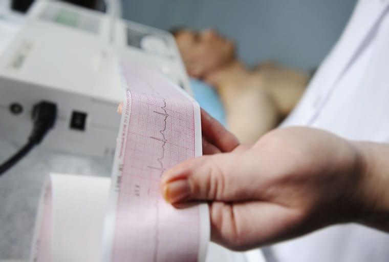 Ondas do eletrocardiograma: como funciona o ECG e como interpretar