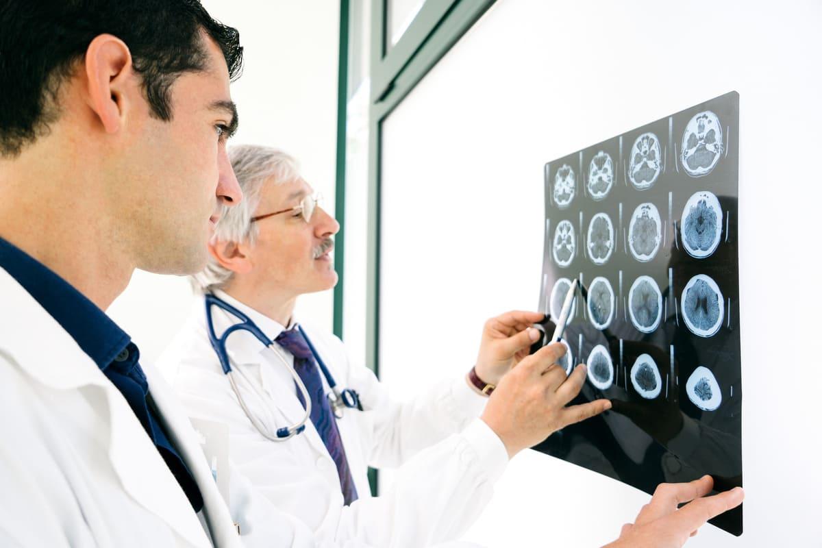 Médicos analisam um filme de tomografia para protocolo de morte encefálica