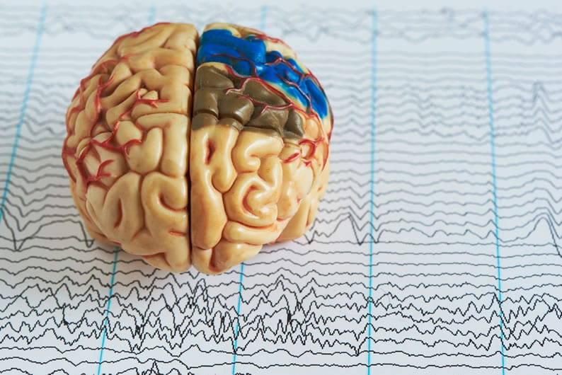 Eletroencefalograma na morte cerebral