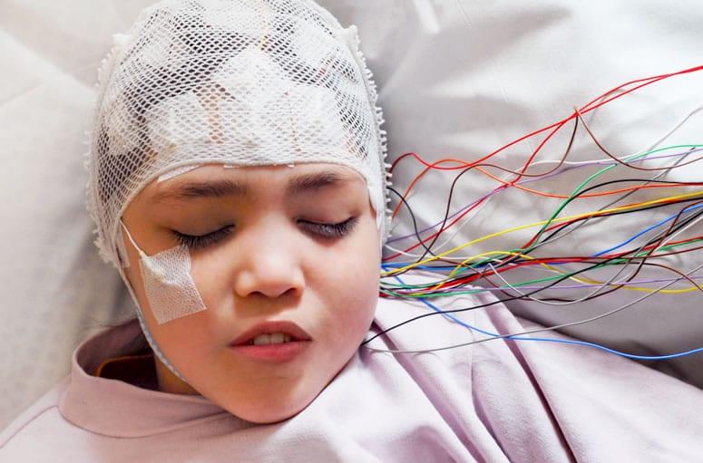 O que é eletroencefalograma em sono e vigília?
