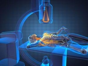 Posicionamento em radiologia: qual importância nos resultados dos exames