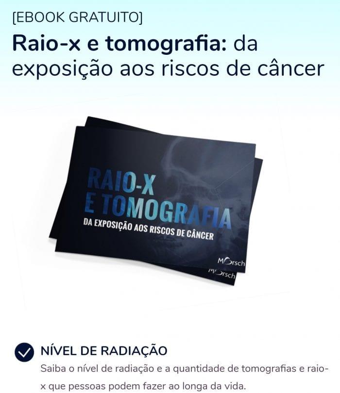 RX de tórax e exposição a radiação