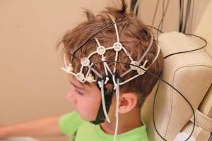 Eletroencefalograma infantil: o que é, para que serve e considerações clínicas