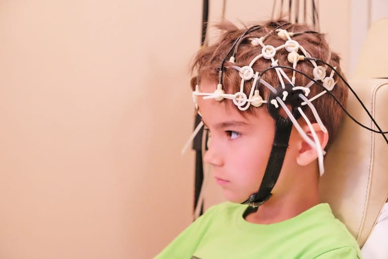 Vantagens do EEG Infantil