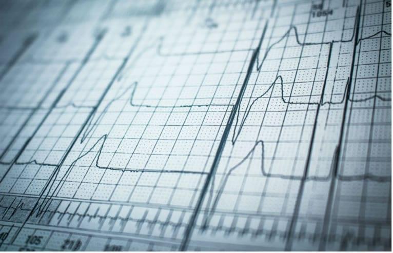 Holter cardíaco ou eletrocardiograma? O que é mais vantajoso?